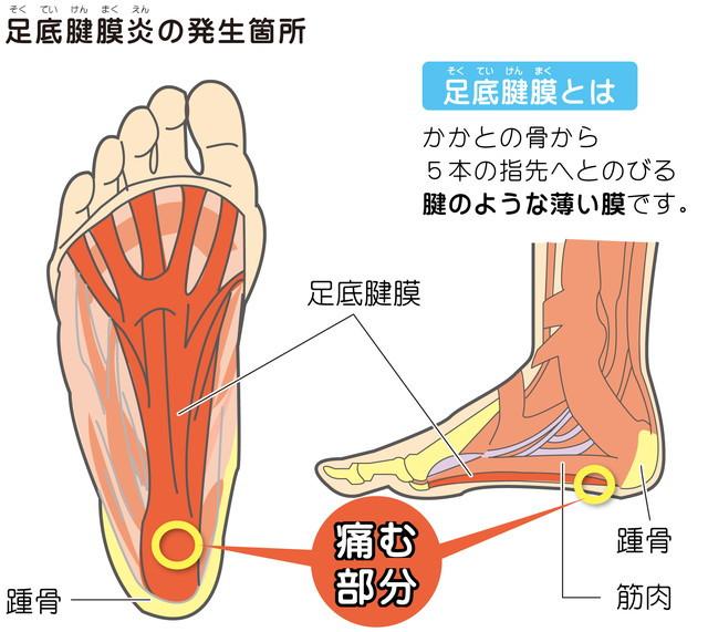 かかと 痛い 内臓 踵骨骨端症(セーバー病、シーバー病) (しょうこつこったんしょう)